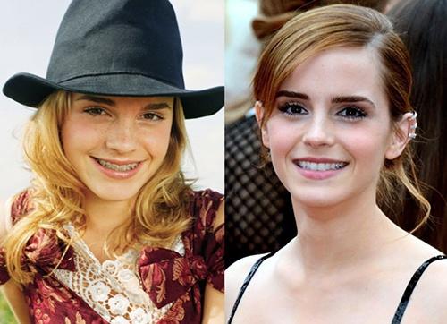 Adult Braces Emma Watson-1