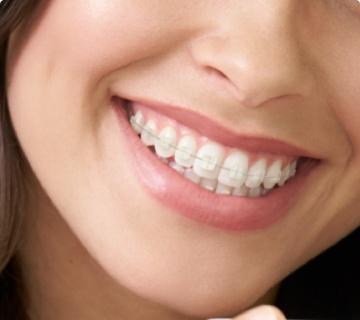 ceramic braces sydney