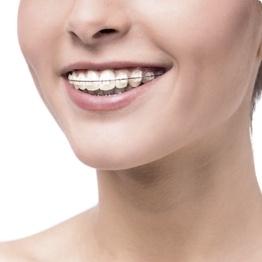 braces inner west orthodontist