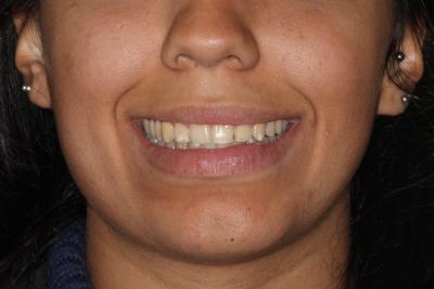 braces sydney before after