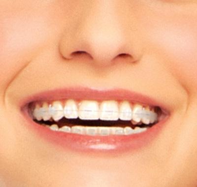 IWO-ceramic-braces-treatments.jpg