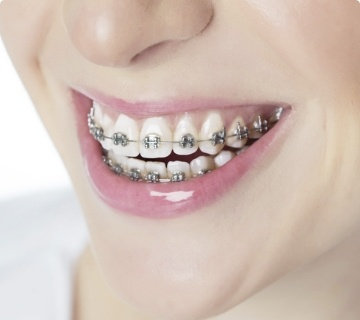 metal braces sydney