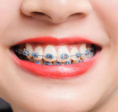 metal_braces.jpg